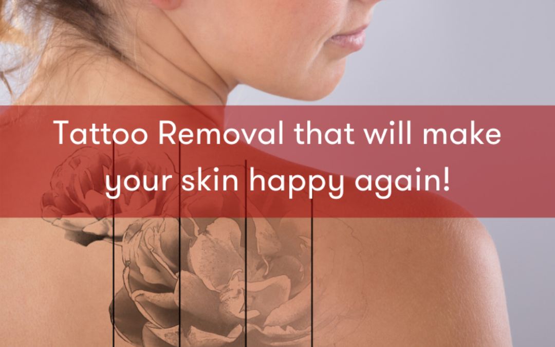 All About Laser Tattoo Removal